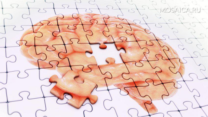 Учёные поведали оповышающих риск болезни Альцгеймера факторах