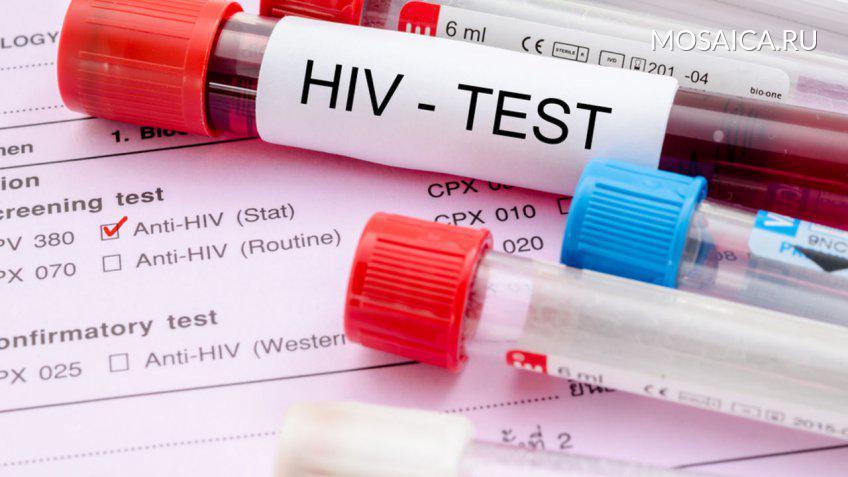 Красноярский край назван одним изсамых неблагоприятных почислу ВИЧ-инфицированных