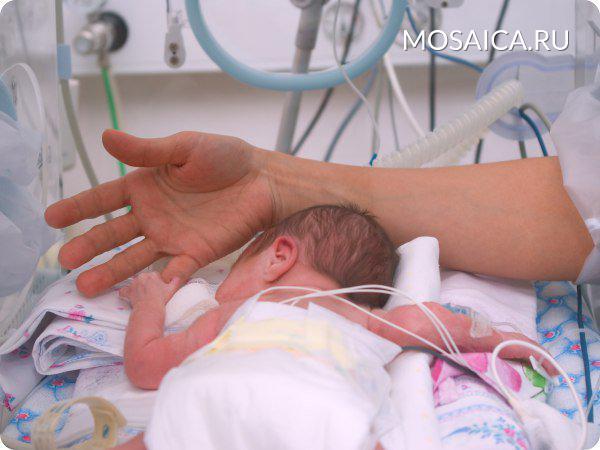 Жизнь грудной малышке спасли ульяновские мед. работники